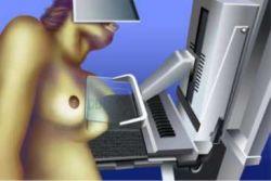 Mamograf.jpg